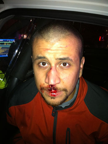 Police photo of George Zimmerman taken the night he shot and killed Trayvon Martin.