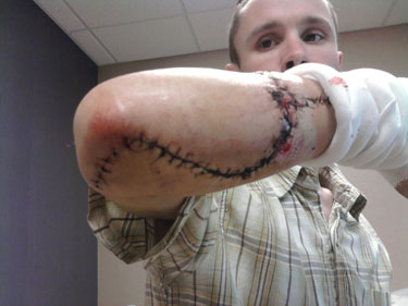 Adam Thull was building a checkout counter for a local bookstore when he noticed a wood panel falling off the edge of his table. As he lunged to catch it, his right forearm got caught on the blade of his Ryobi table saw – and the machine quickly cut completely through one of his forearm bones and a nerve.